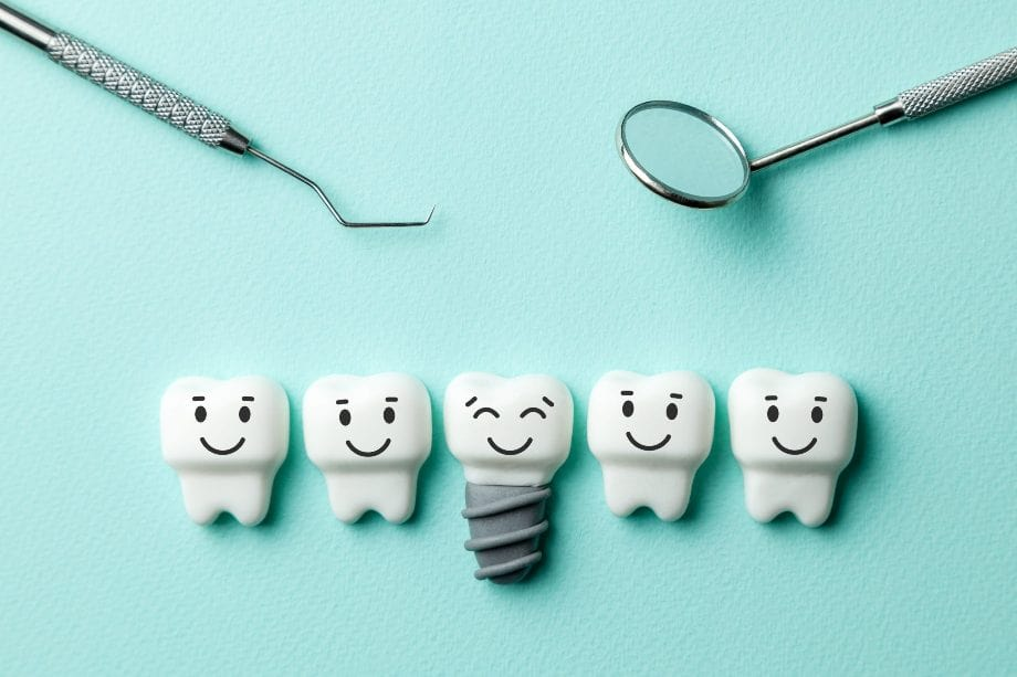 How Dental Implants Can Help You Unmask a Dazzling Smile