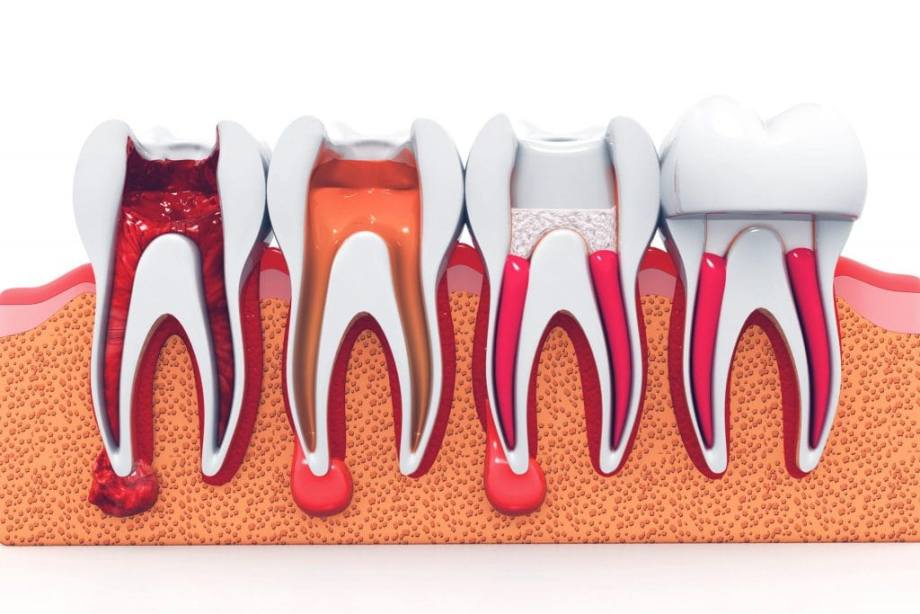 Root Canal 101